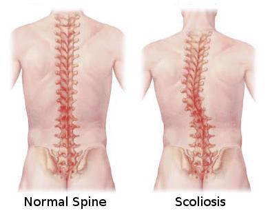 scoliosis3