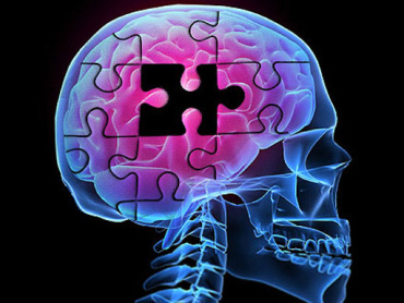 alzheimers-brainpuzzle