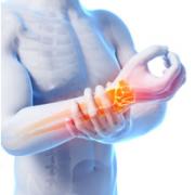 3959-arthritis-29
